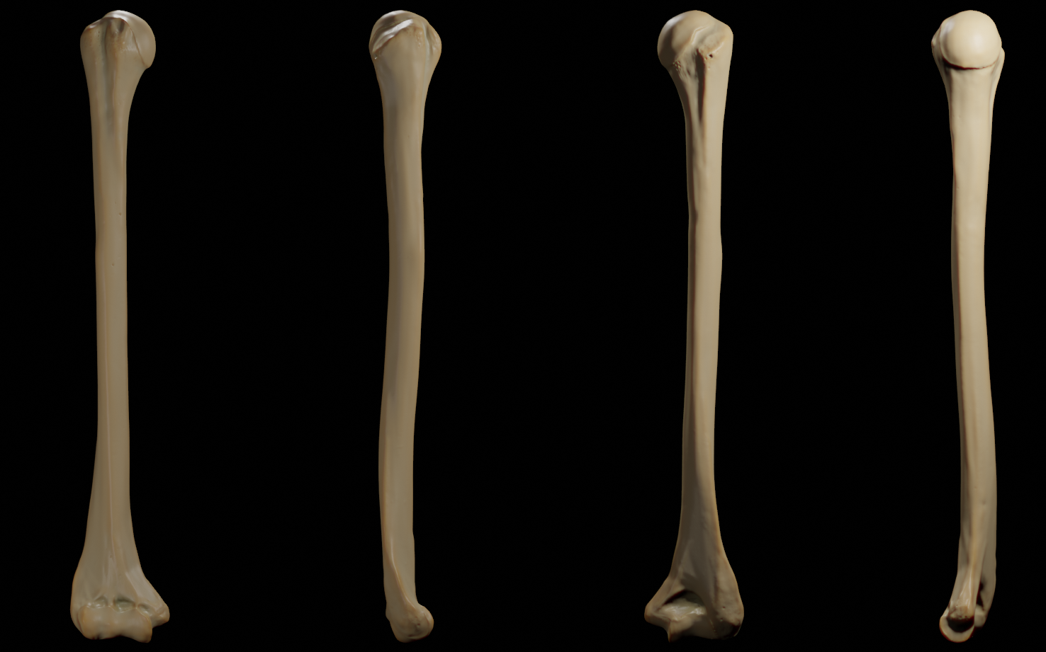Humerus - Anterior, Posterior, Medial and lateral views