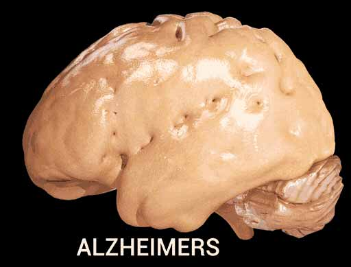 Alzheimer's disease - Cortical Atrophy.